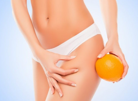 The ultimate guide to cellulite: causes and treatment options