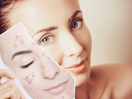Essential Guide To Hyperpigmentation: what is, what causes it and how you can treat it