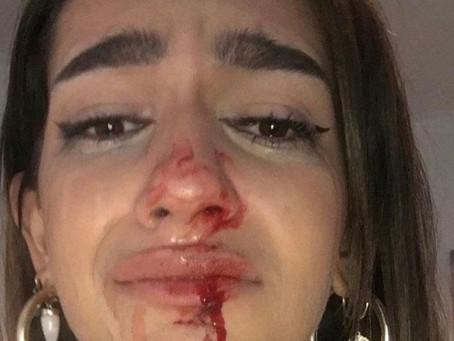 Violencia a Mujeres Trans en ESPAÑA