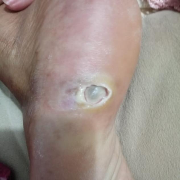ferida