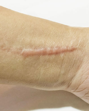 keloidal scar on wrist skin cause by sur