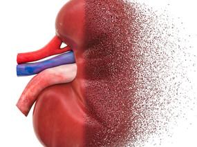 ¿Que puedo comer si tengo insuficiencia renal?