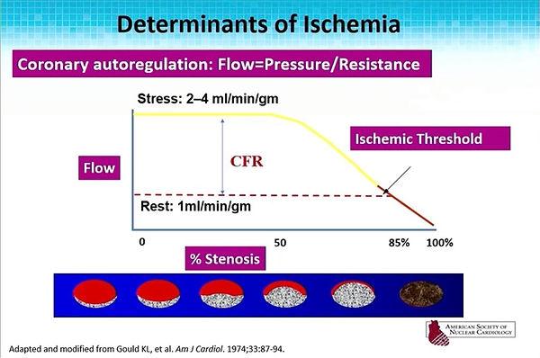 determinants of ischemia.jpg