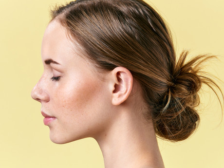 Why does Botox® In Brighton only work on dynamic wrinkles?