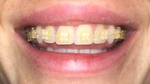Do braces make your teeth yellow? Read on to know how to stop it..