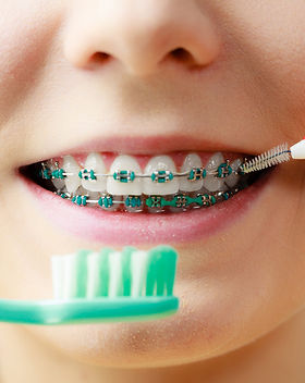 brush-teeth-orthodontist.jpg
