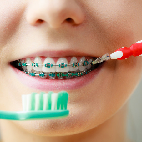 Brushing your teeth with braces on? Read this to make your life simpler!