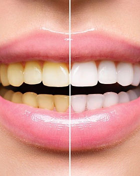 teeth-whitening-830x593.jpg