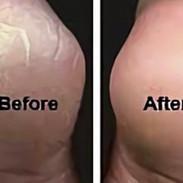 Use coconut oil to tighten skin!  In add