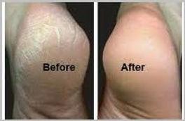 heals feet-001.JPG