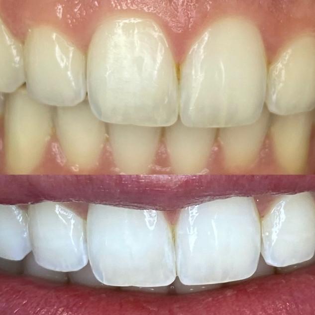 Best Dallas Teeth Whitening.jpg