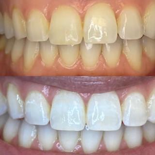 Dentist Teeth Whitening.jpg