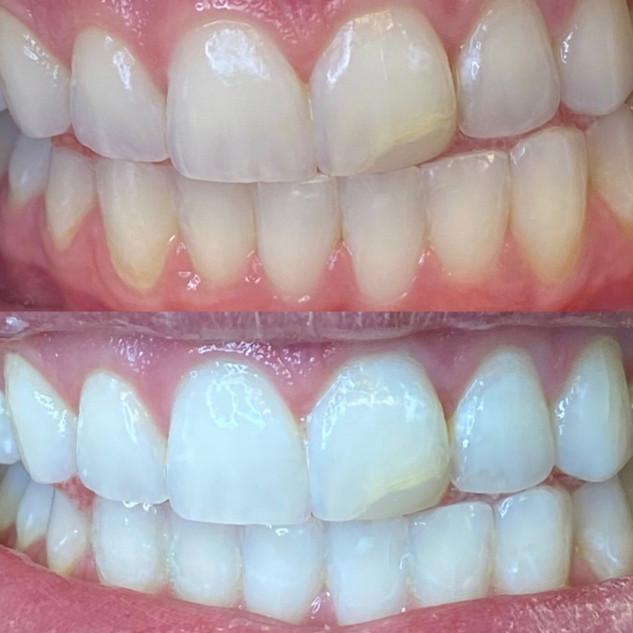 dental teeth whitening utah.jpg