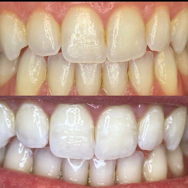 Teeth Whitening Salt Lake City.JPG