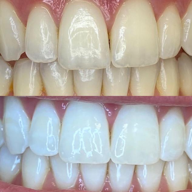 Best DFW Teeth Whitening.jpg