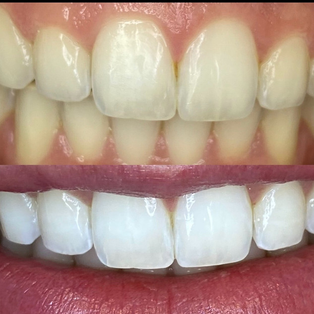 dental teeth whitening.jpg