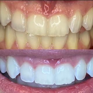 best dentist to whiten teeth.JPG