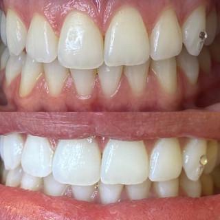 soft touch teeth whitening.jpg