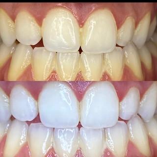 How to Whiten Teeth.JPG