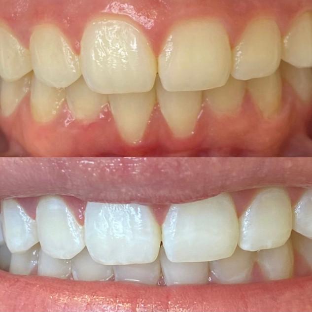 salt lake city teeth whitening.JPG