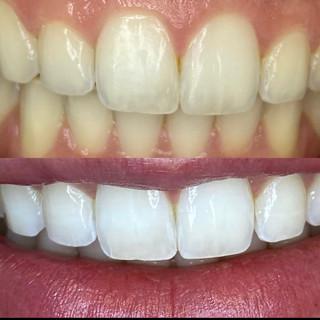 Dental Whitening.JPG