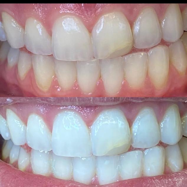 dental whitening utah.JPG