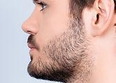 rinoplastía cirugía de nariz
