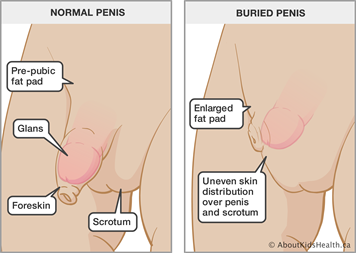 Can circumcision cause a buried/ hidden penis?