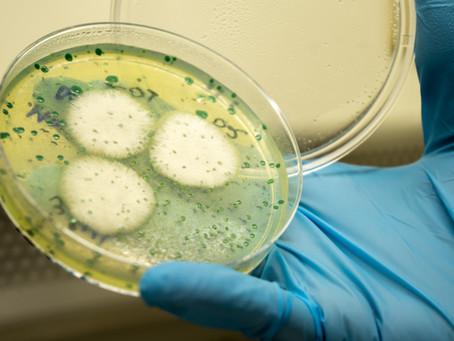 Importância do controle de qualidade microbiológico na produção de cervejas