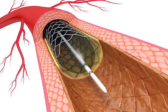 Αγγειοπλαστική στεφανιαίων | PCI | stent