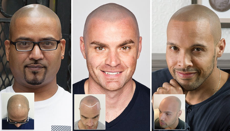 Scalp Micropigmentation