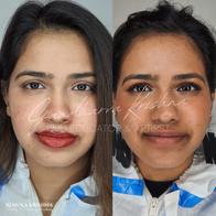 Dark Lip Correction, Microblading, Perma