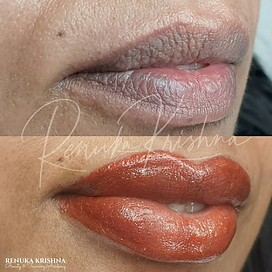 Lip Blush tattoo aka dark lip correction