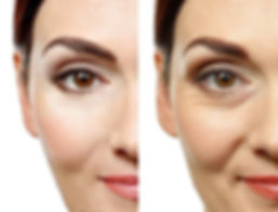 Anti-Aging-Spa-before-and-after-2_edited