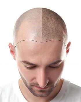 scalp microblading