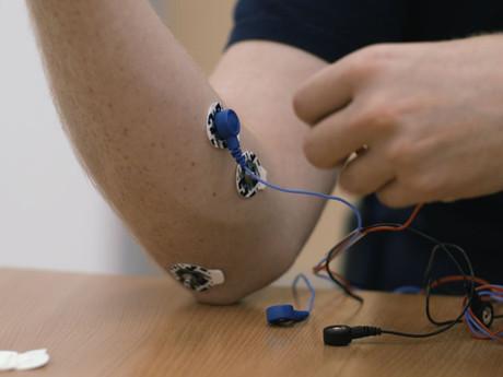 Open Bionics: Prótesis para extremidades impresas en 3D