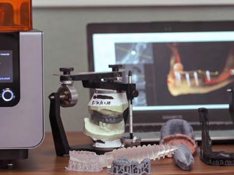 Form 2: Impresión 3D para odontología digital