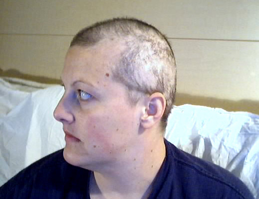 My hair had some time to grow back during the first few chemotherapy treatments. Patches would fall out while I slept at night—each morning, my pillow had hair all over it.