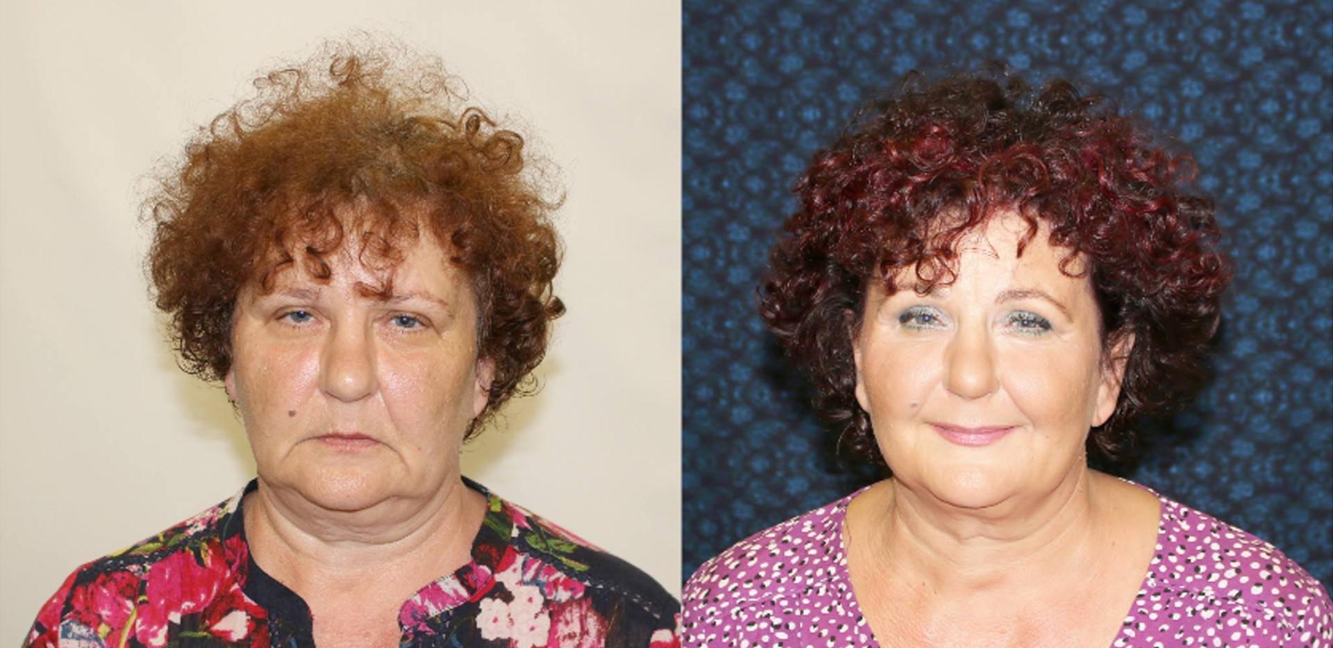 Ilona před a po nalíčená.jpg