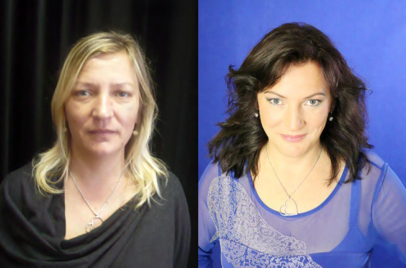 Farkašová před a po NOVÉ.jpg
