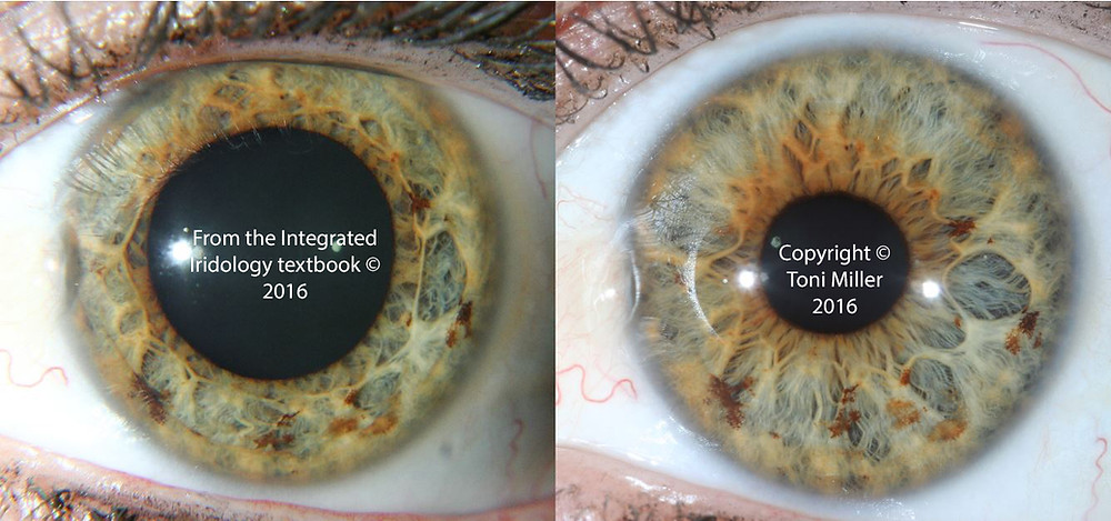 Page 342 Integrated Iridology textbook.