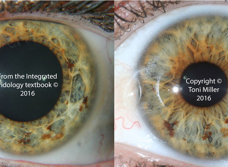 Does the iris change? Part 3