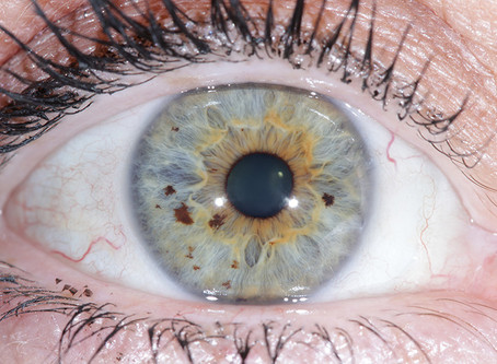 Does the iris change? Part 1 - pigments