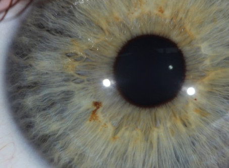 Does the iris change? Part 2.