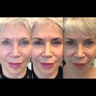 """In many situations we tend to lose our brow hair predominantly at the ends. Often times thyroid issues or simply aging mean the hair just no longer grows where it should. Eyebrow tattooing provides a noticeable """"lift"""" to the face."""