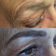 Eyebrow tattooing is perfect for all healthy skin types.