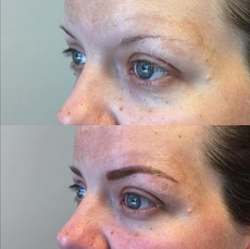 Microbladed eyebrows before and immediately following treatment. Freshly microbladed or tattooed eyebrows can lose up to 50% of their color when healed. Periodic color boosts help to ensure your brows stay looking fabulous year round.