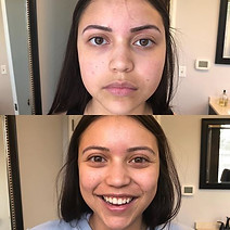Eyebrows can initially appear too dark immediately after tattooing. This is normal. They will fade up to 50% within one week.