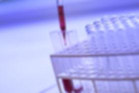 Urine and Drug Testing