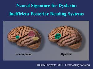 DISLEXIA: Determinan las posibles causas de la dislexia